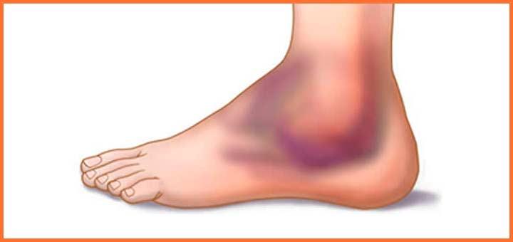 Esguince en tobillo o dolor de tobillo [voyacorrer.com]