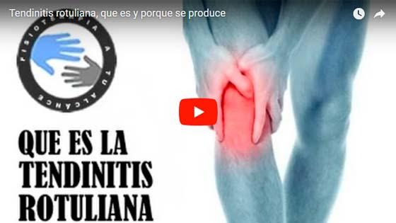 Tendinitis rotuliana. Tratamiento y solucion en voyacorrer.com