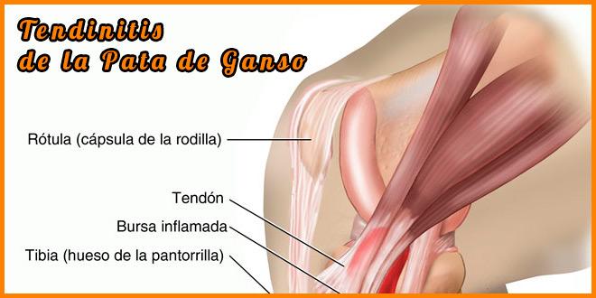 Tendinitis pata de ganso sintomas | voyacorrer.com