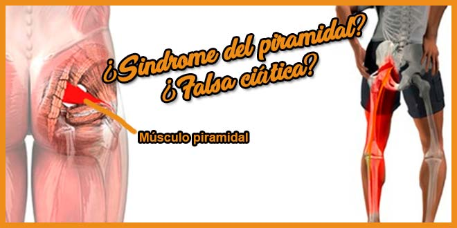 Sindrome del piramidal / Falsa ciatica - voyacorrer.com